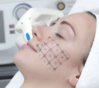 Thermage acne scars treatment